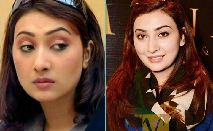 Ayesha-Khan-Before-And-After-Plastic-Surgery