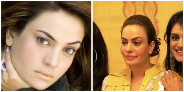 Sadia-Imam-Before-And-After-Plastic-Surgery