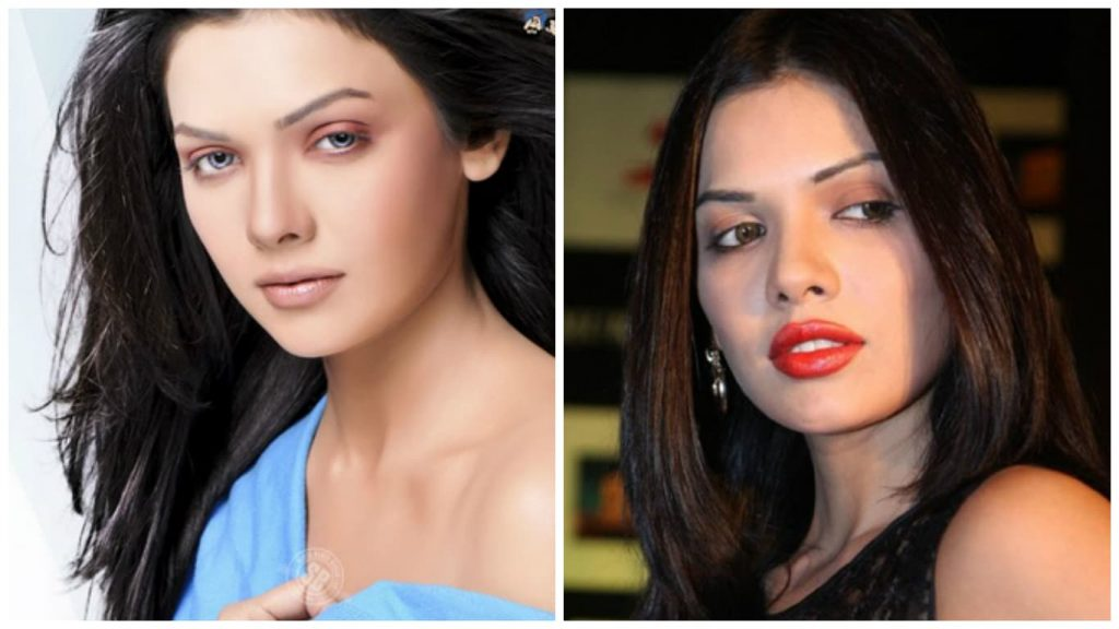 Sara-Loren-Before-And-After-Plastic-Surgery