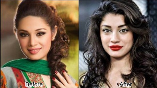 Sidrah-Batool-Before-And-After-Plastic-Surgery